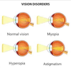 hyperopia magas fokú asztigmatizmus jobb látásvizsgálat